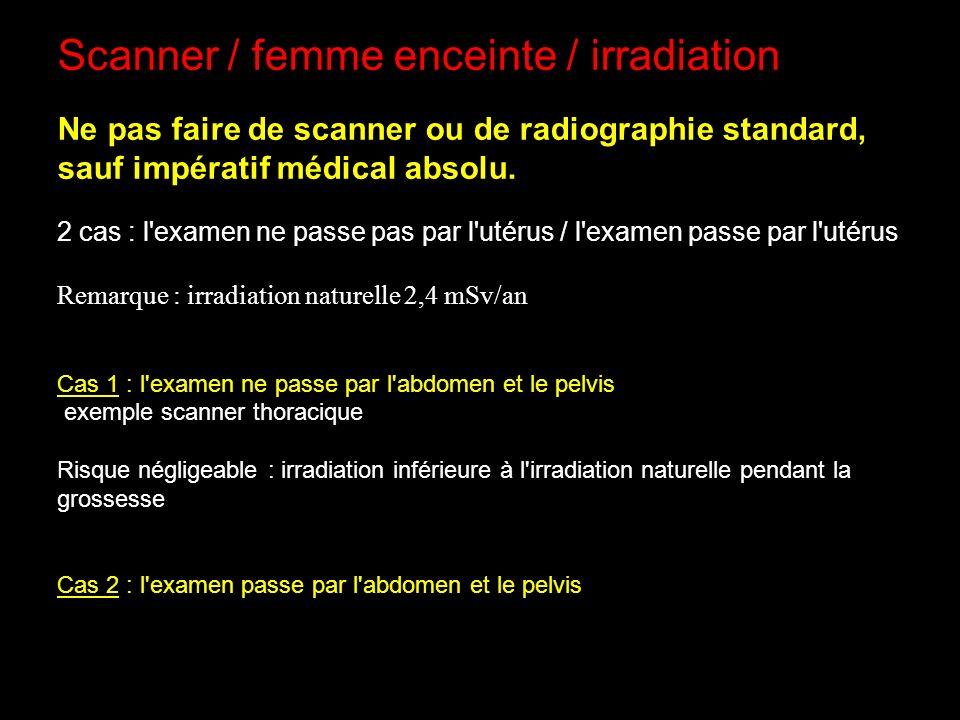 Scanner / femme enceinte / irradiation
