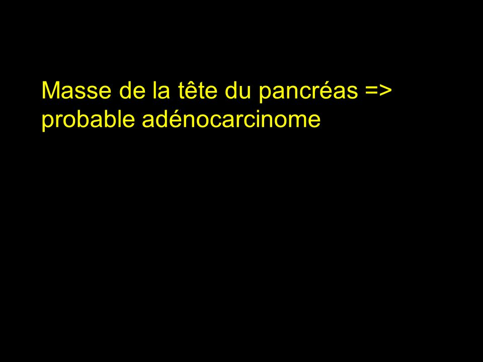 Masse de la tête du pancréas => probable adénocarcinome