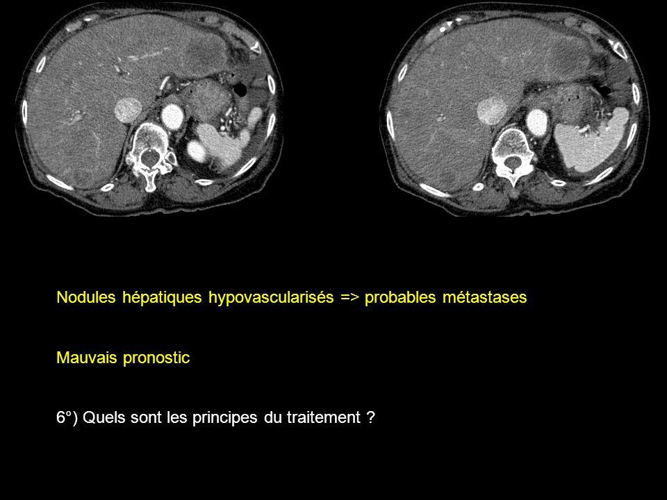 Nodules hépatiques hypovascularisés => probables métastases