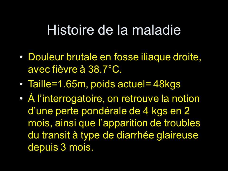 Histoire de la maladieDouleur brutale en fosse iliaque droite, avec fièvre à 38.7°C. Taille=1.65m, poids actuel= 48kgs.