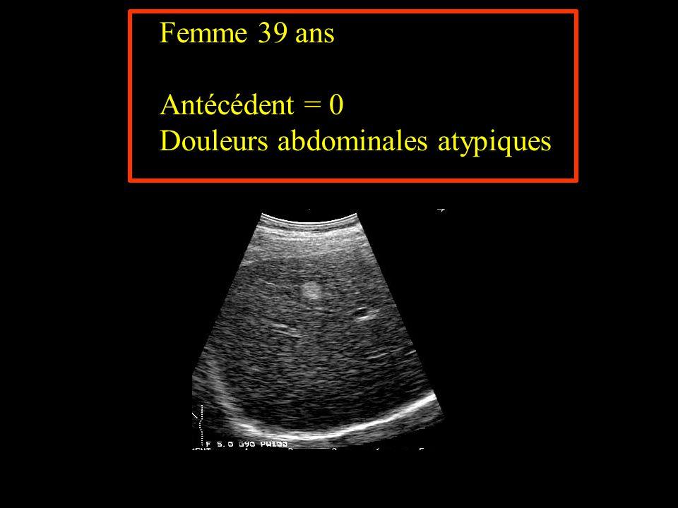 Douleurs abdominales atypiques