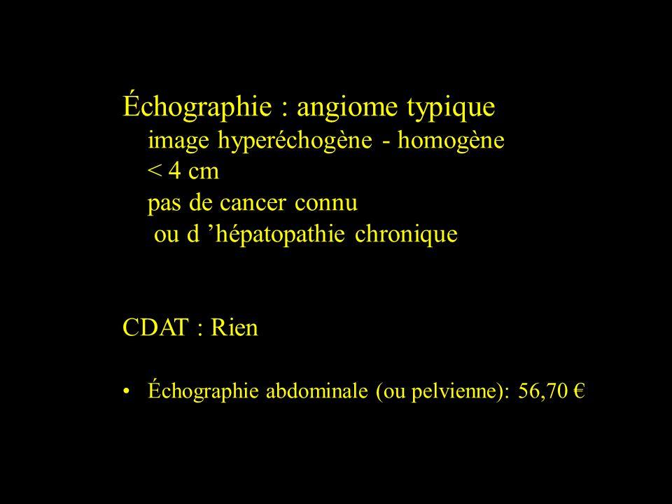 Échographie : angiome typique