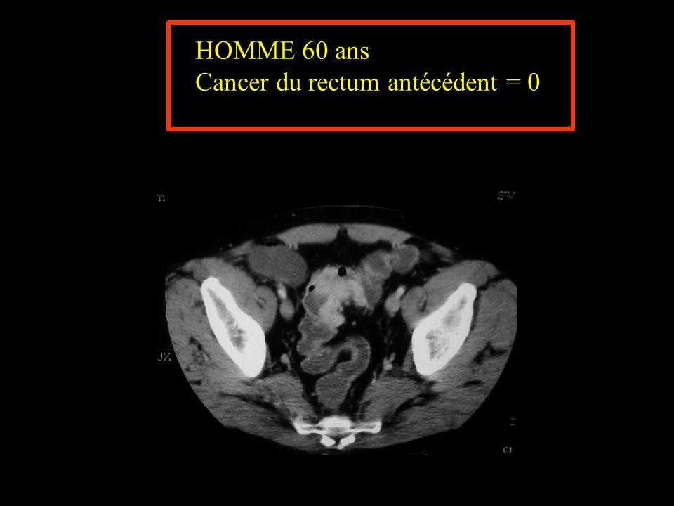 Cancer du rectum antécédent = 0