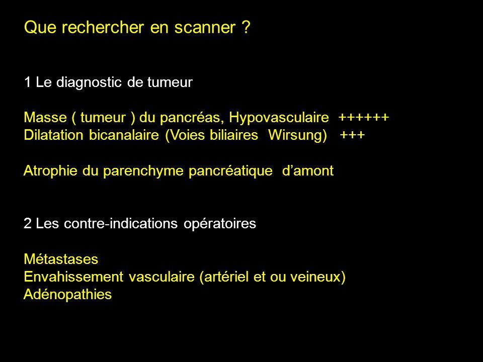 Que rechercher en scanner