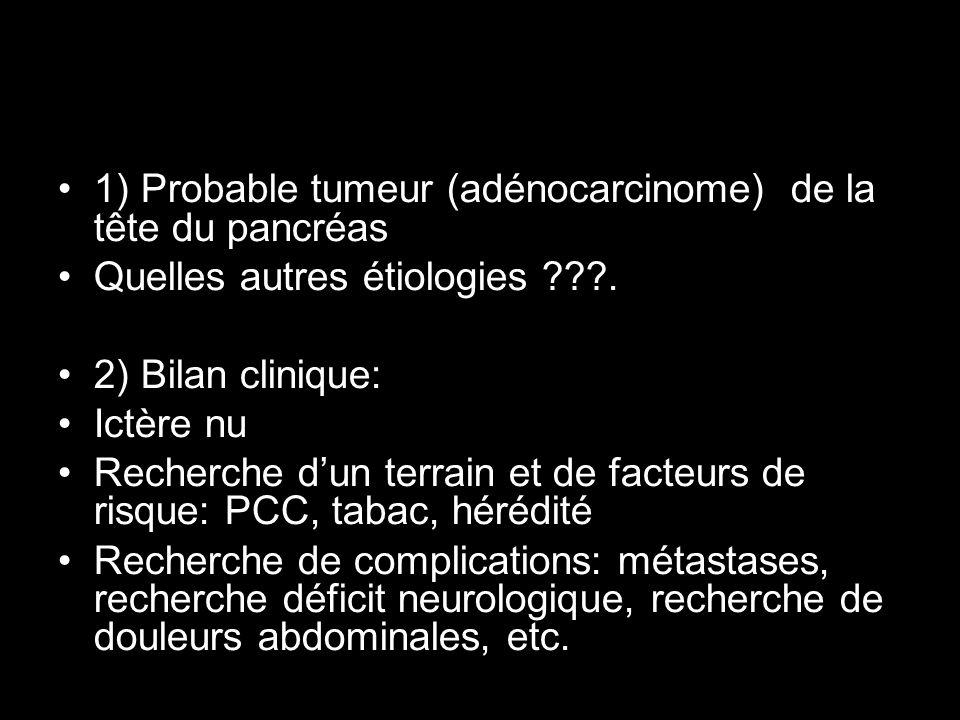 1) Probable tumeur (adénocarcinome) de la tête du pancréas