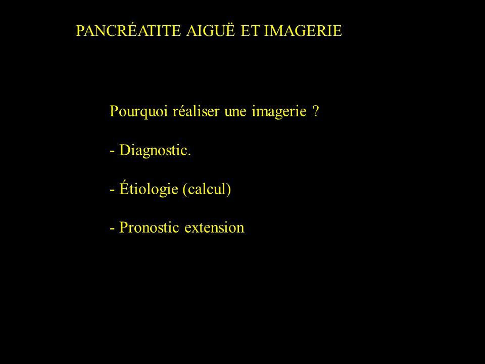 PANCRÉATITE AIGUË ET IMAGERIE