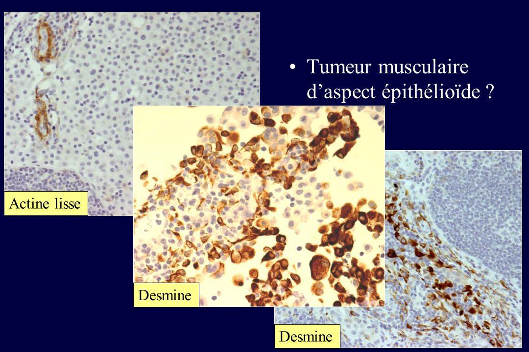 Tumeur musculaire d'aspect épithélioïde