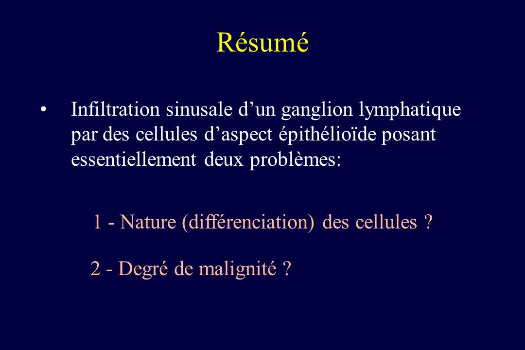 Résumé Infiltration sinusale d'un ganglion lymphatique par des cellules d'aspect épithélioïde posant essentiellement deux problèmes: