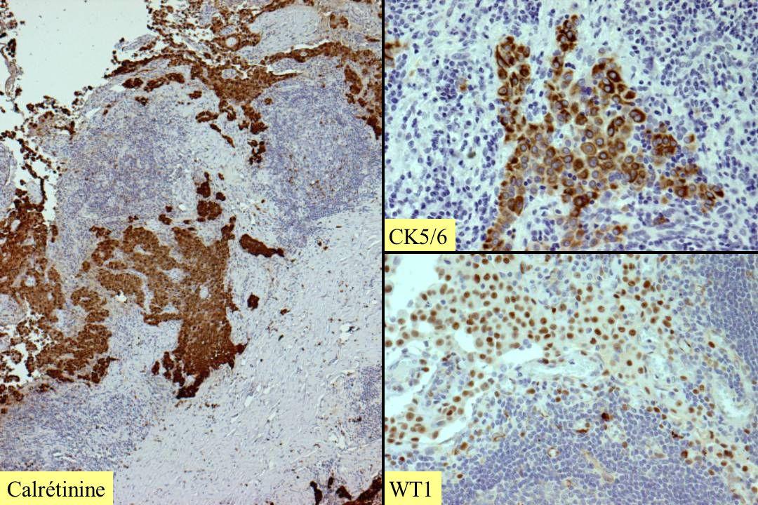 Calrétinine CK5/6 WT1