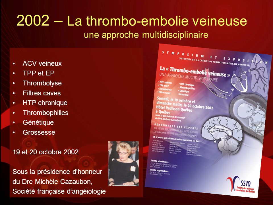 2002 – La thrombo-embolie veineuse une approche multidisciplinaire