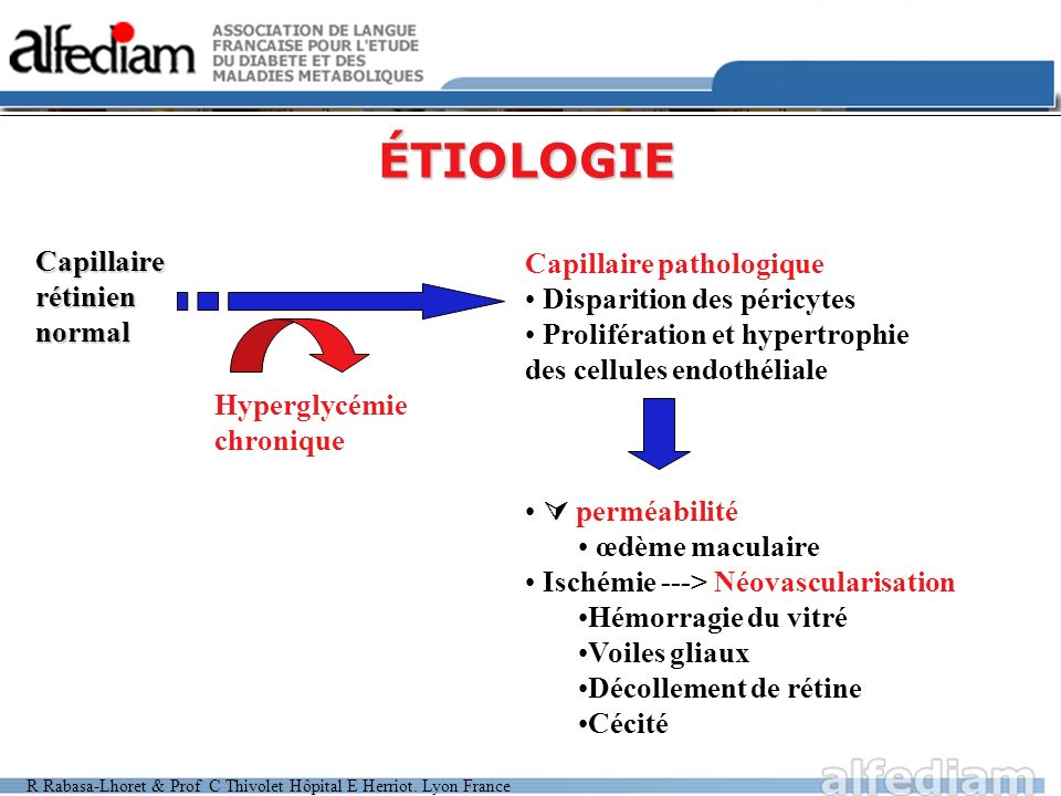 ÉTIOLOGIE Capillaire rétinien normal Capillaire pathologique
