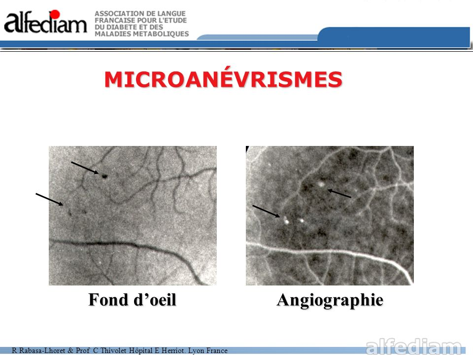 MICROANÉVRISMES Fond d'oeil Angiographie