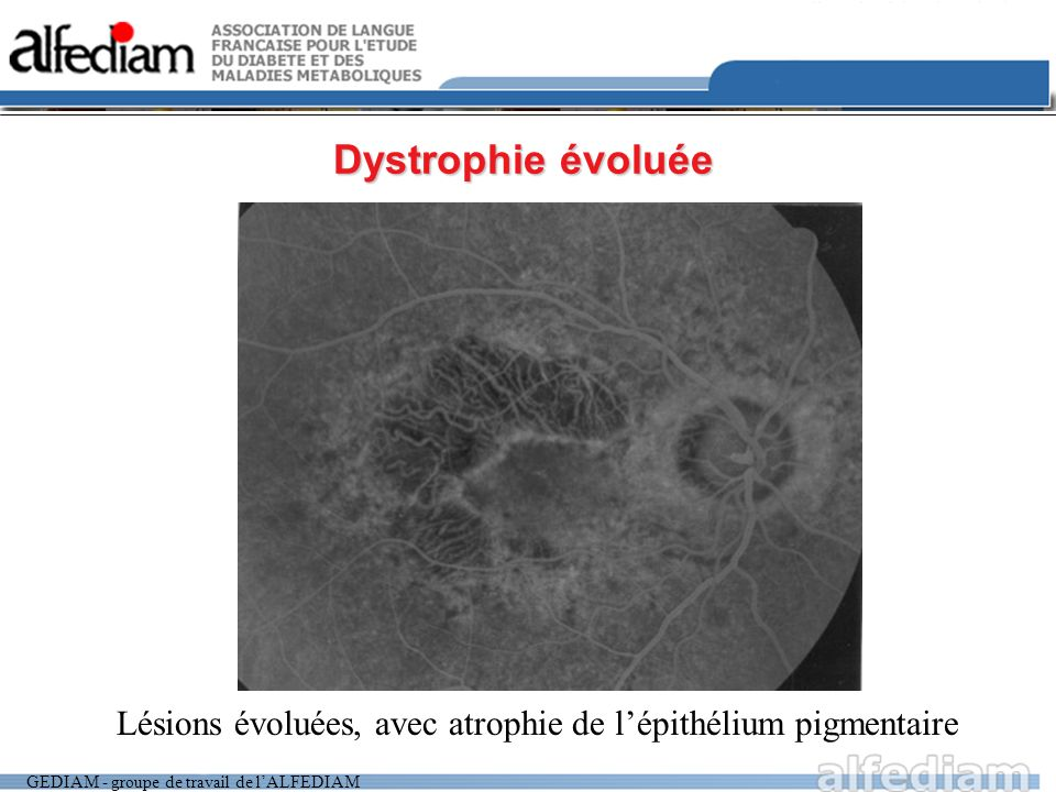 Dystrophie évoluée Lésions évoluées, avec atrophie de l'épithélium pigmentaire