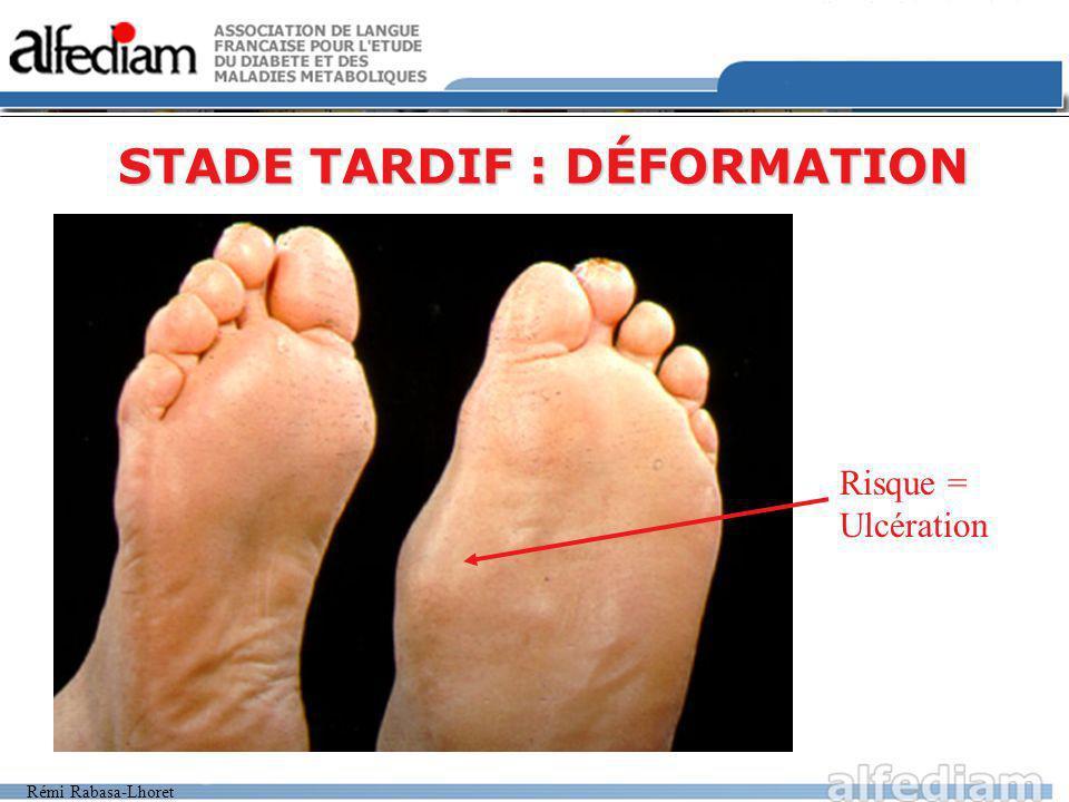 STADE TARDIF : DÉFORMATION