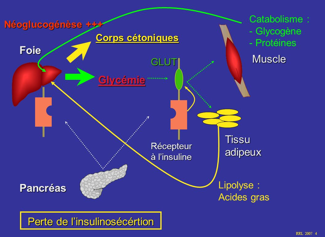 Perte de l'insulinosécértion