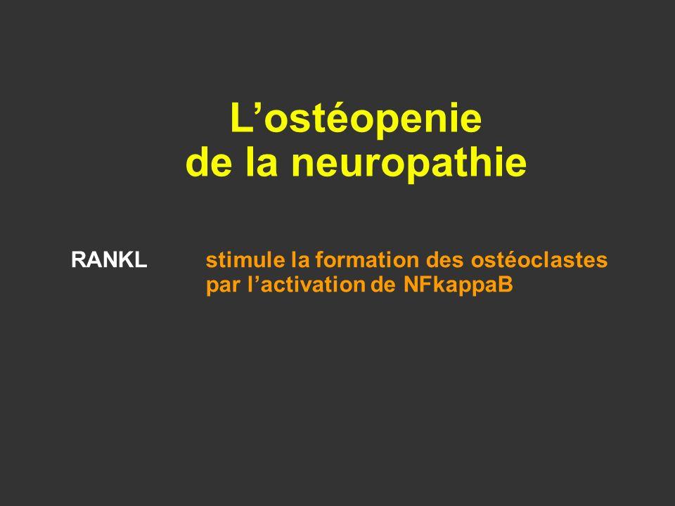 L'ostéopenie de la neuropathie