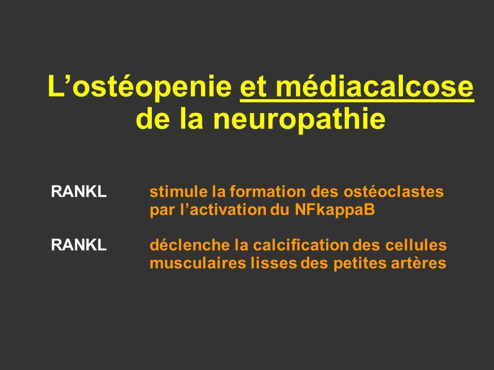 L'ostéopenie et médiacalcose de la neuropathie