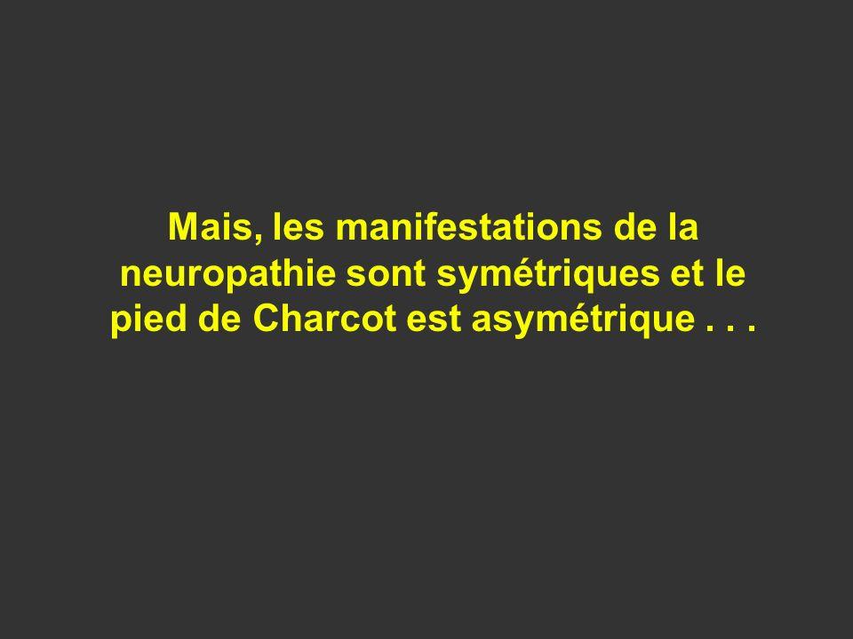 Mais, les manifestations de la neuropathie sont symétriques et le pied de Charcot est asymétrique .