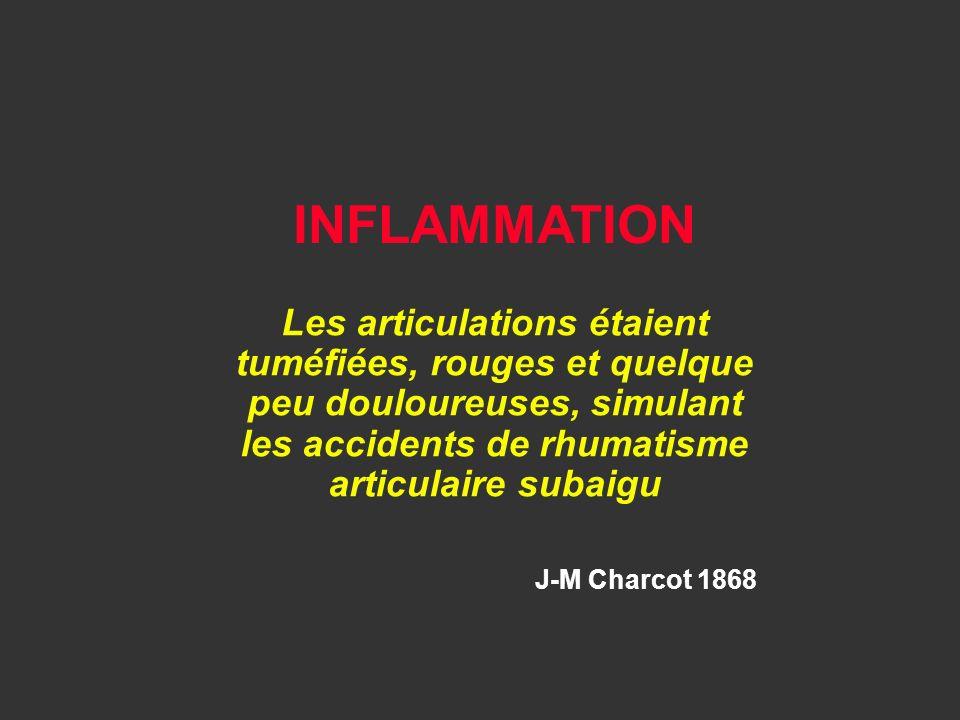 INFLAMMATION Les articulations étaient tuméfiées, rouges et quelque peu douloureuses, simulant les accidents de rhumatisme articulaire subaigu.