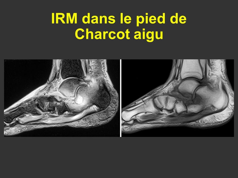 IRM dans le pied de Charcot aigu