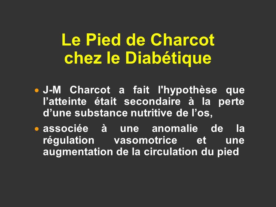 Le Pied de Charcot chez le Diabétique