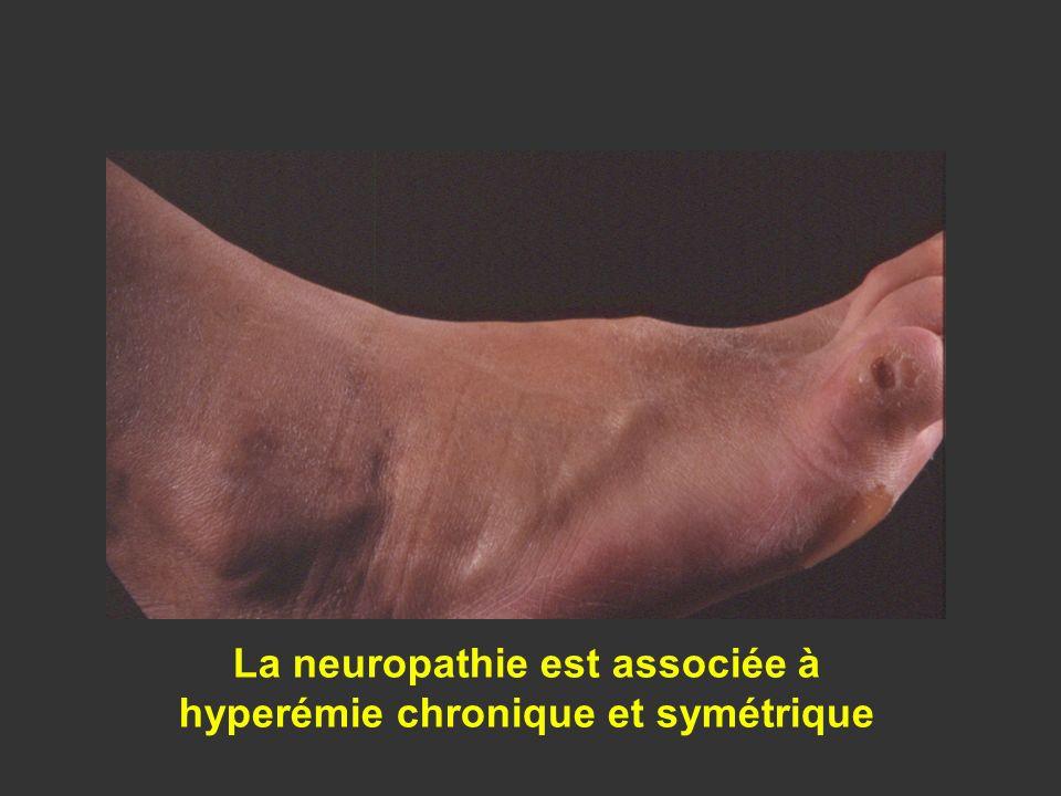 La neuropathie est associée à hyperémie chronique et symétrique