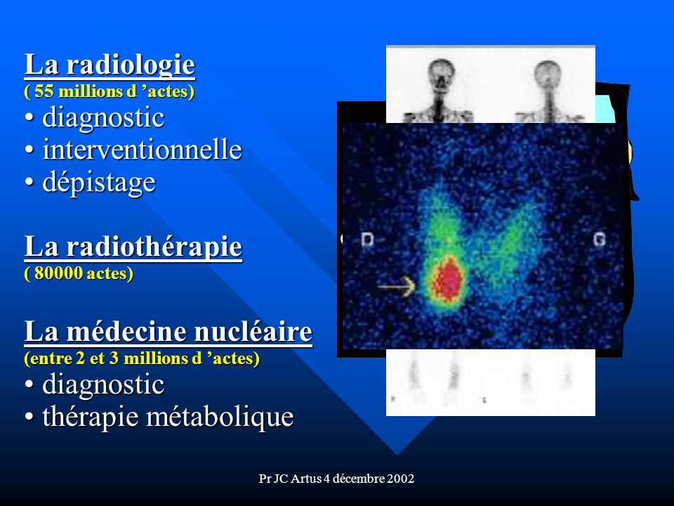 La radiologie diagnostic interventionnelle dépistage La radiothérapie