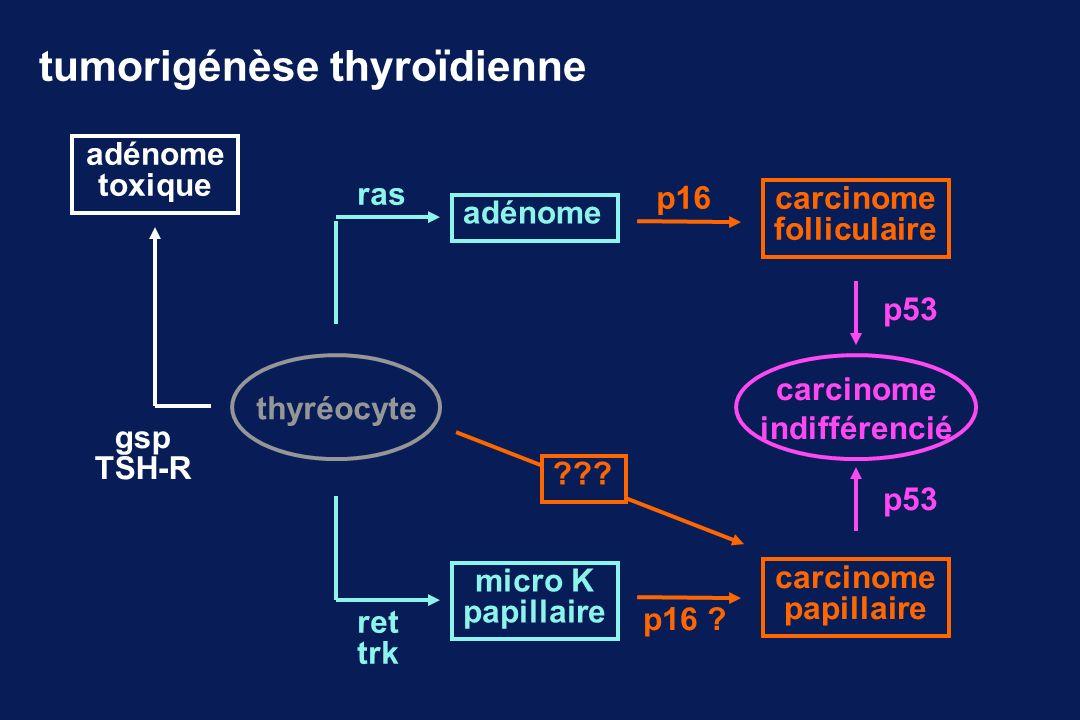 tumorigénèse thyroïdienne