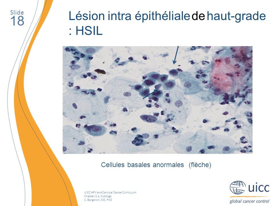 18 Lésion intra épithéliale de haut-grade : HSIL Slide