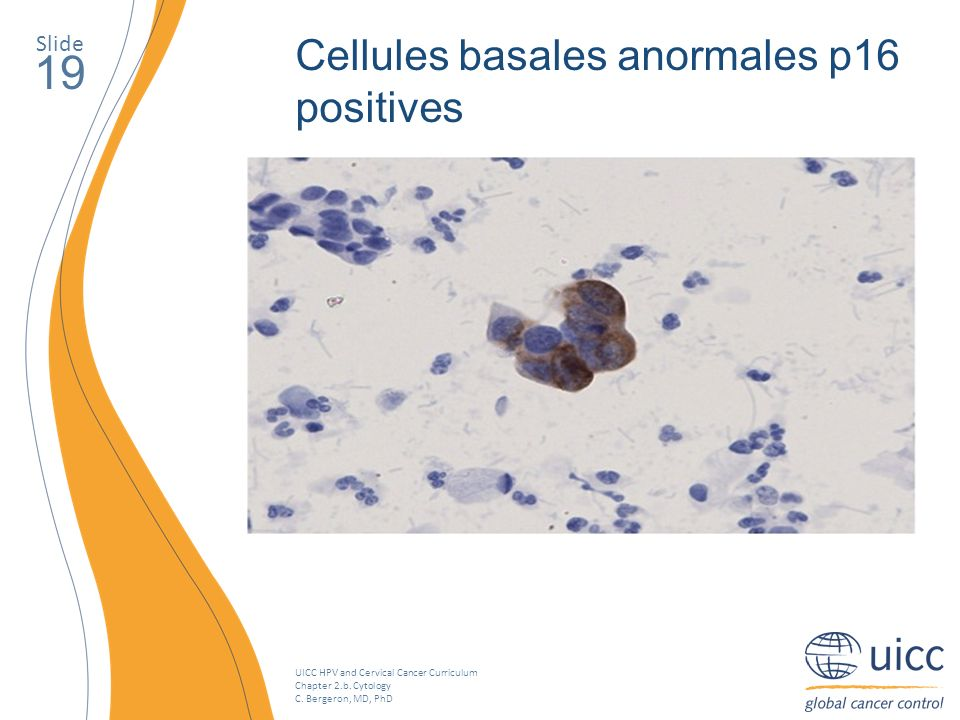 19 Cellules basales anormales p16 positives Slide
