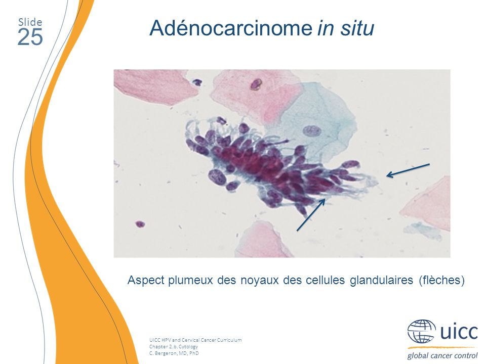 25 Adénocarcinome in situ Slide