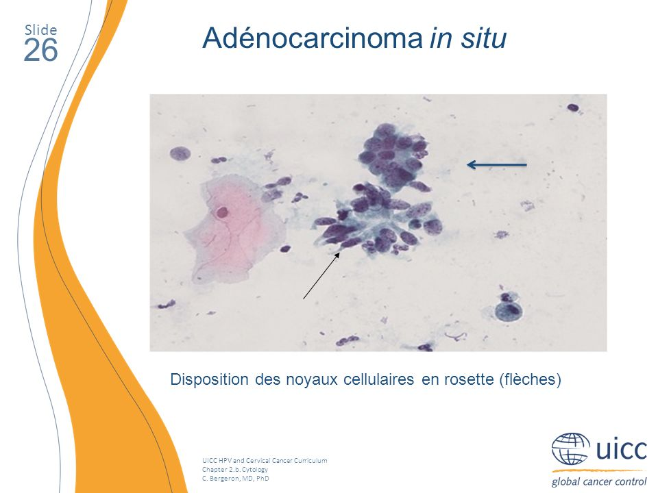 26 Adénocarcinoma in situ Slide