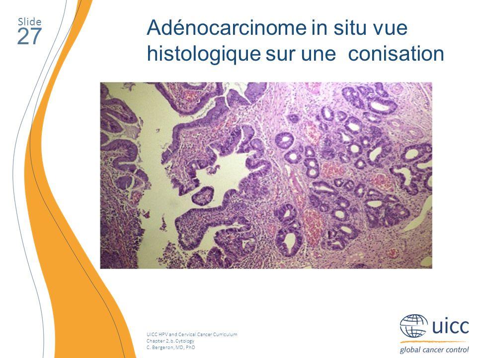 27 Adénocarcinome in situ vue histologique sur une conisation Slide