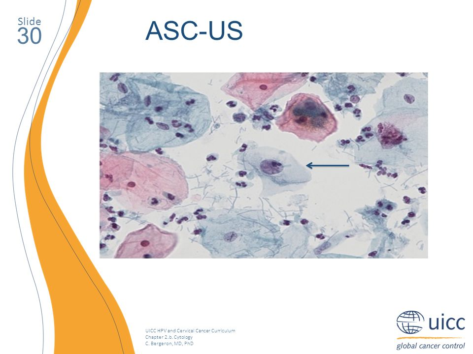 Slide ASC-US. 30. On voit ici une lésion classée ASC-US.
