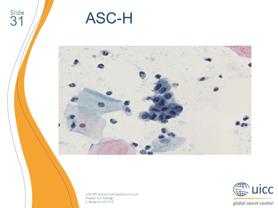 Slide ASC-H 31 Exemple d'ASC-H. Les cellules basales ont un rapport noyau/cytoplasme augmenté.