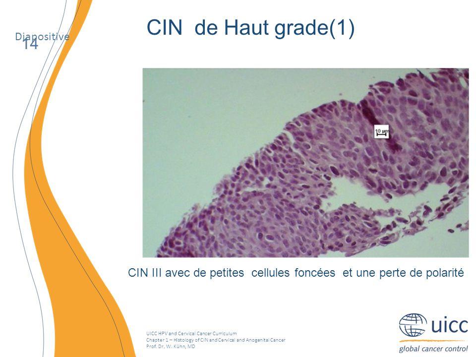 CIN III avec de petites cellules foncées et une perte de polarité