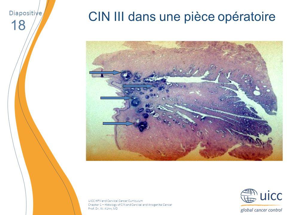 18 CIN III dans une pièce opératoire Diapositive