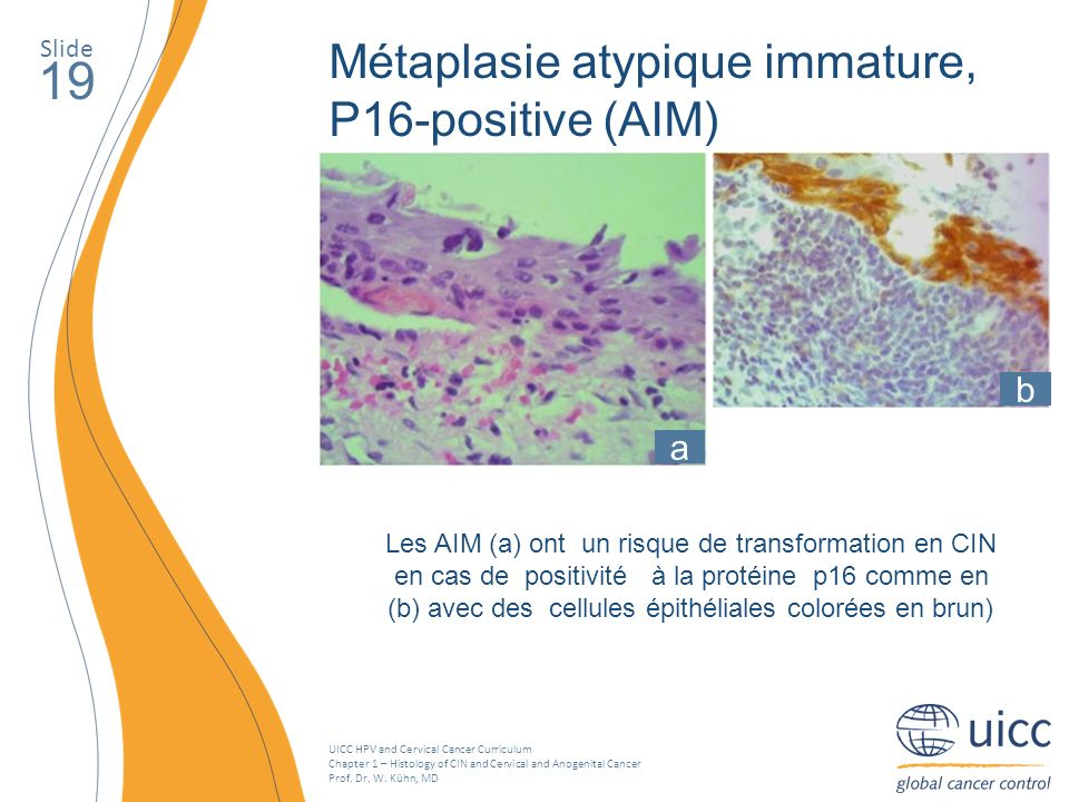 19 Métaplasie atypique immature, P16-positive (AIM) b a Slide