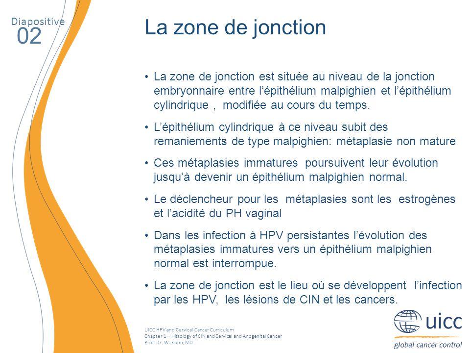 02 La zone de jonction Diapositive