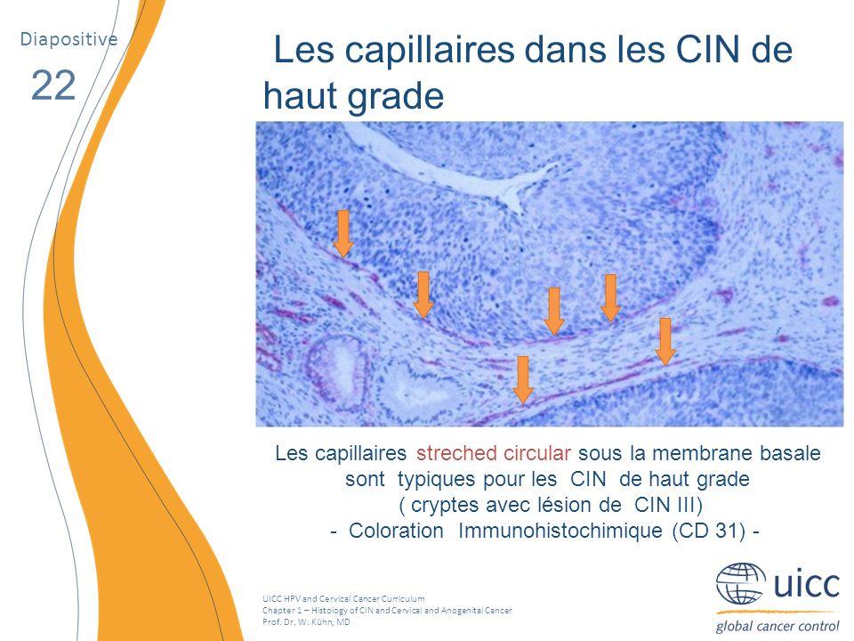 22 Les capillaires dans les CIN de haut grade Diapositive