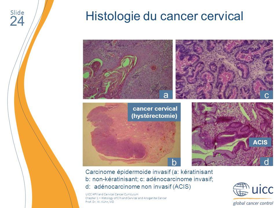 cancer cervical (hystérectomie)