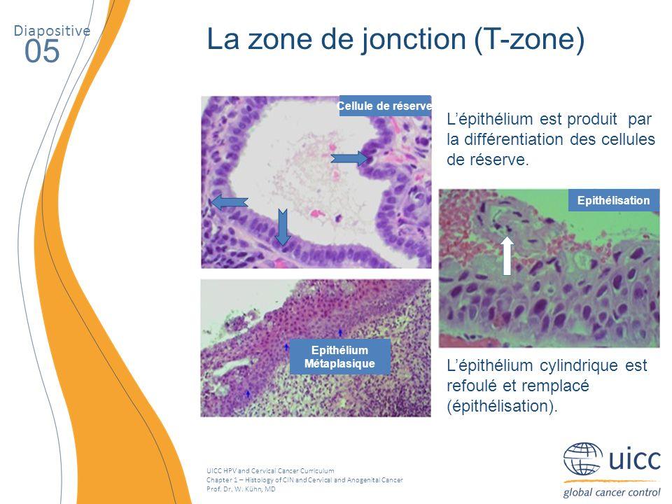 05 La zone de jonction (T-zone) Diapositive