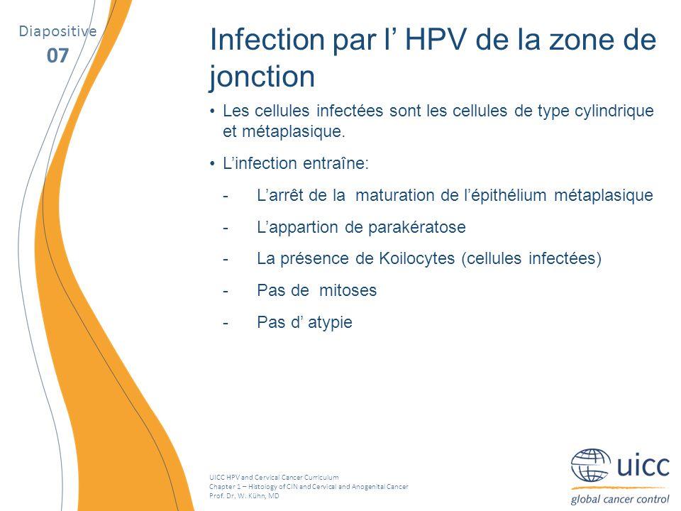 Infection par l' HPV de la zone de jonction