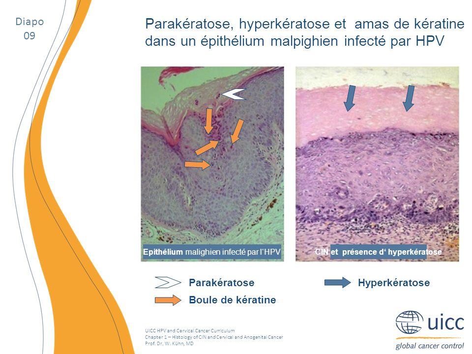 CIN et présence d' hyperkératose