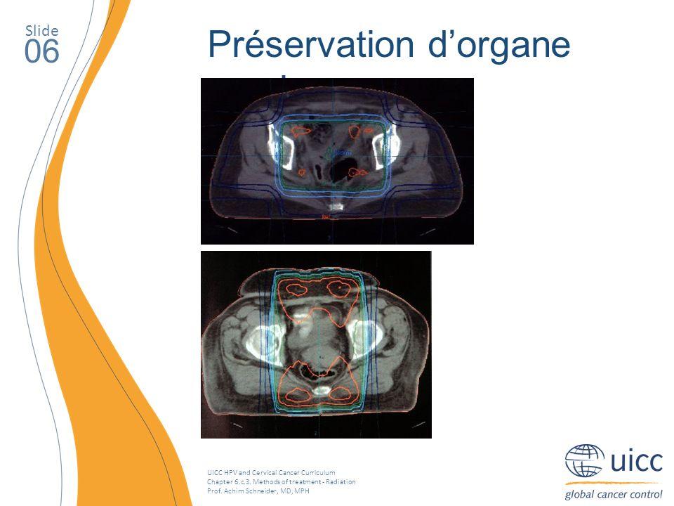 Préservation d'organe sparing