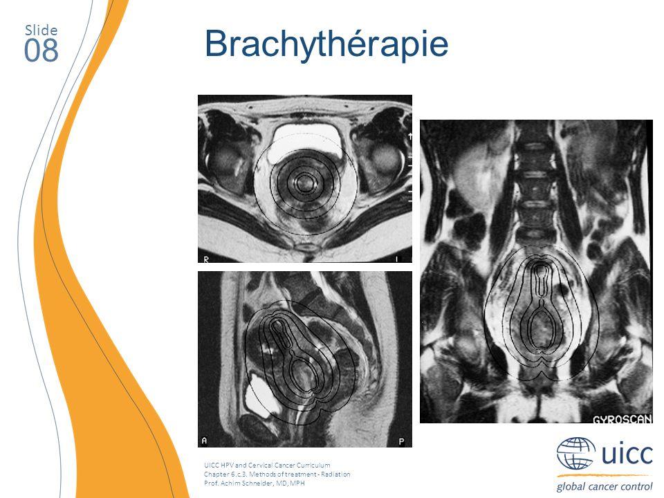 Slide Brachythérapie. 08. La brachythérapie intracavitaire est la seule possibilité de délivrer des doses permettant l'éradication de la tumeur.