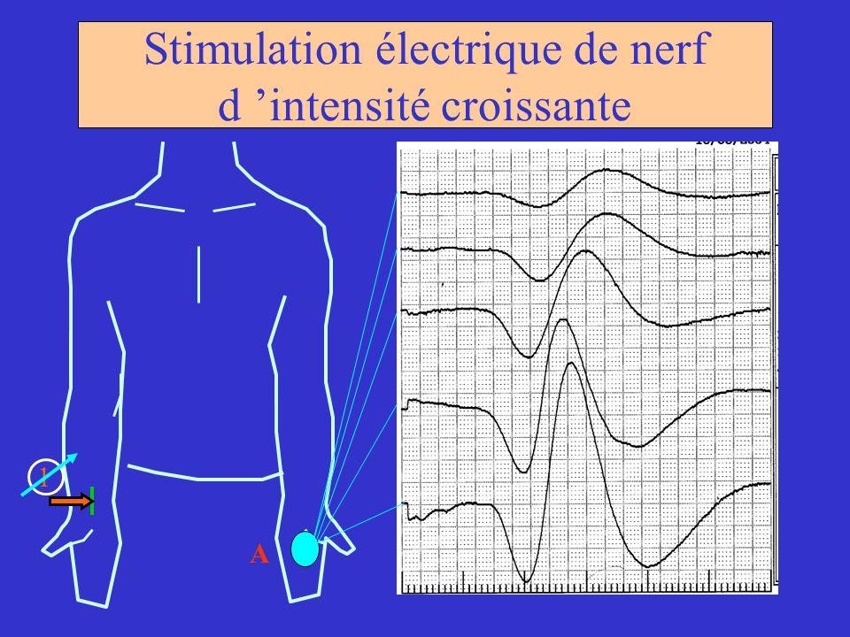 Stimulation électrique de nerf d 'intensité croissante
