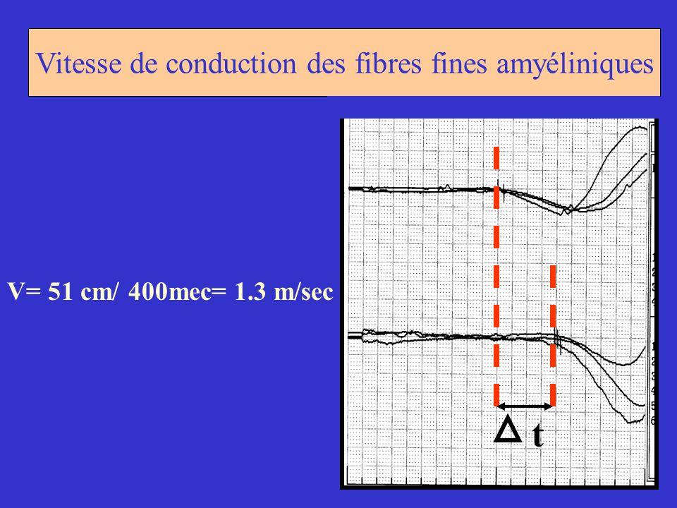 Vitesse de conduction des fibres fines amyéliniques