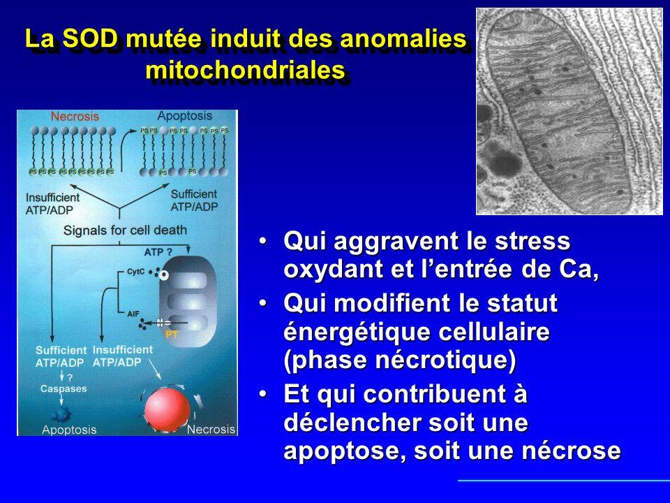 La SOD mutée induit des anomalies mitochondriales