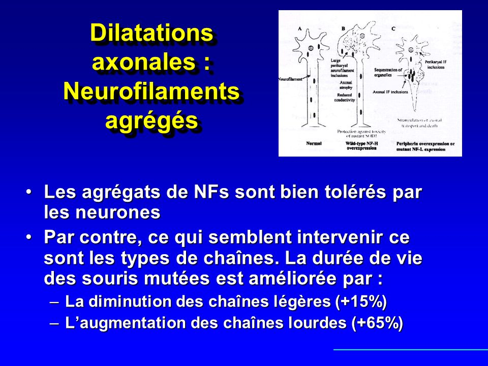 Dilatations axonales : Neurofilaments agrégés